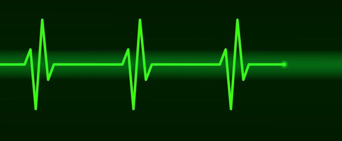 schwarz-grün EKG