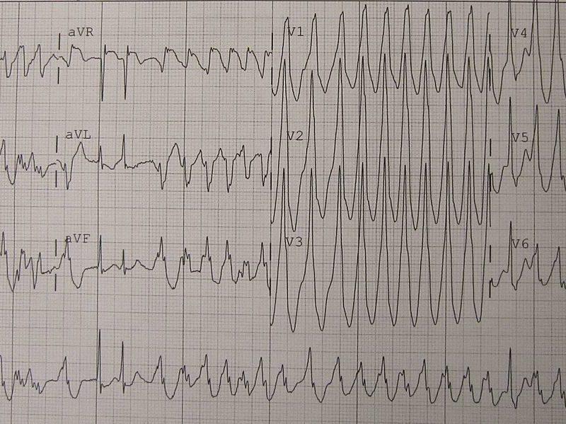 Herz-Kammerflimmern, EKG